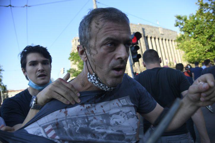 Sergej Trifunović napadnut na protestu, pukla mu arkada! Jurili ga i gađali flašama